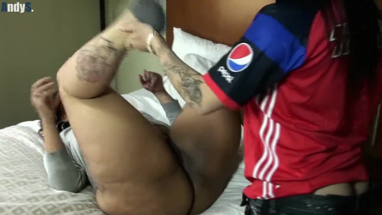 Traumatic penis injuries